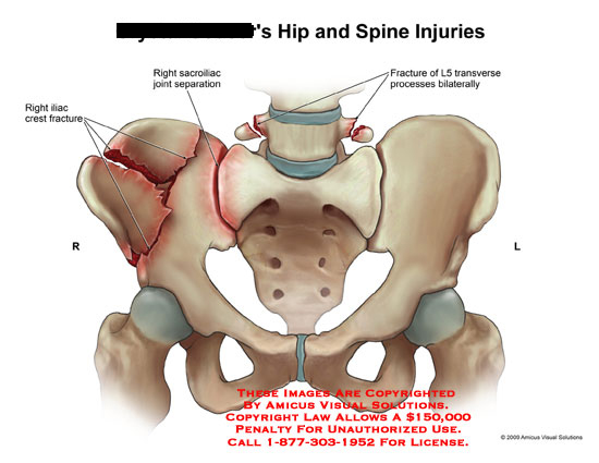 Hip and Spine