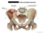 Pelvic iliac crest fracture and SI joint separation.