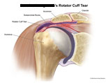Rotator cuff tear and fluid in subacromial bursa