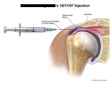 Subacromial injection with needle administering pain relief.