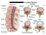 Sagittal and axial views of lumbar disc bulges and herniations.