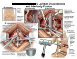Lumbar incision, laminectomies, cautery of veins, disc material removed, and spacers placed.