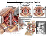 Decortication of lumbar vertebrae, bone graft placement and rods screwed into place.
