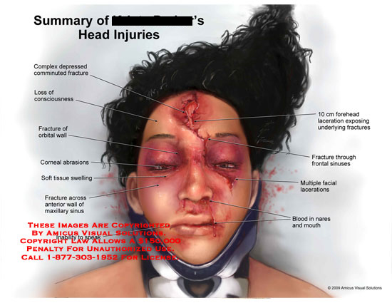 Comminuted facial fracture