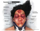 Face with complex lacerations, corneal abrasion, and head injuries.