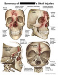 Various views of 3D skull showing multiple fractures.