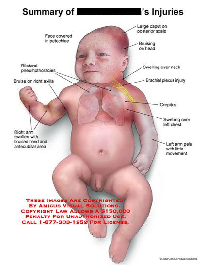 Bruised caput on head, petechiae, brachial plexus injury, pneumothoracies, and arm injuries.