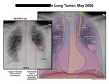 Chest X-ray with outlines of anatomyshowing location of tumor.
