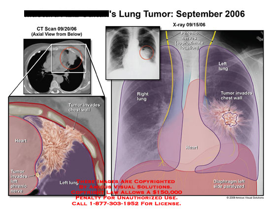 Chest X-ray and CT with outlines of anatomyshowing location of tumor.
