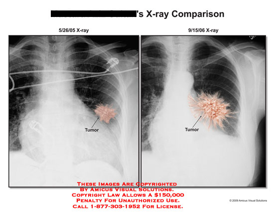 Chest X-rays comparing size and location of tumor.