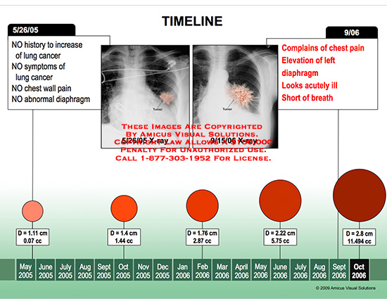 amicus,chart,tumor,growth,size,calendar,time,line,timeline