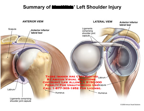amicus,injury,shoulder,labral,tear,labrum,ligaments,joint,capsule,scapula,humerus