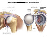Anterior and lateral views of shoulder joint with anterior labral tear.