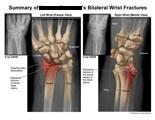 Bilateral radius fractures with scapholunate dissociation.
