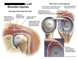 Front view and side view of shoulder joint showing labral tear, bursitis, and AC joint injury.