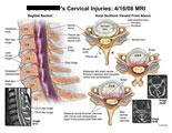 Sagittal and axial views showing disc bulges and foraminal stenosis at C4-5 and C5-6.