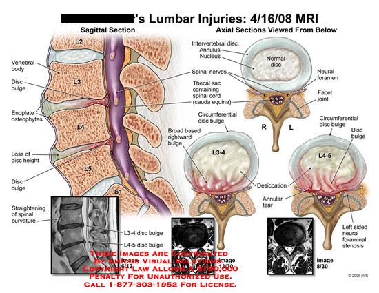 Sagittal and axial views showing disc bulges and foraminal stenosis at L3-4 and L4-5.