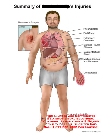 amicus,injury,summary,abrasions,scapula,pneumothorax,flail,chest,pulmonary,contusion,pleural,effusion,gastrointestinal,bleed,bruises,dysesthesias,ankle