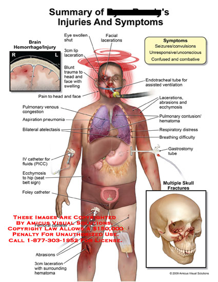 amicus,injury,summary,symptoms,brain,hemmorhage,seizures,convulsions,unresponsive,unconscious,confused,combative,facial,lacerations,eye,swollen,lip,blunt,trauma,head,face,swelling,pain,pulmonary,venous,congestion,aspiration,pneumonia,atelectasis,ecchymosis,hip,foley,catheter,femoral,abrasions,skull,fractures,gastronomy,tube,breathing,difficulty,respiratory,distress,pulmonary,contusions,endotracheal,tube,ventilation