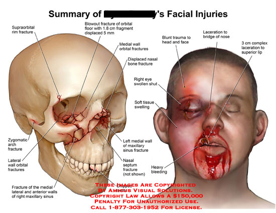 amicus,injury,facial,face,supraorbital,rim,fracture,zygomatic,arch,lateral,wall,orbital,maxillary,sinus,floor,blowout,fragment,displaced,nasal,bone,septum,chipped,teeth,bleeding,tissue,swelling,swollen,eye,head,face,trauma,nose,laceration,lip
