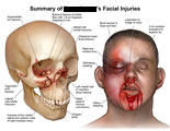 Skull with orbital blowout fracture and maxillary fractures, next to illustration of face with lacerations and bleeding.