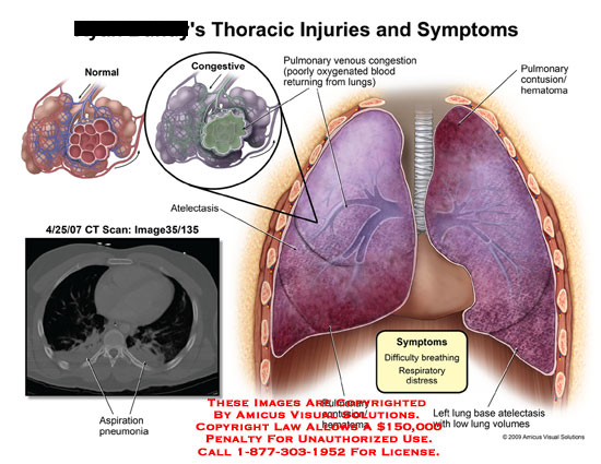 lungs with pulmonary venous congestion, contusions, and low lung volumes
