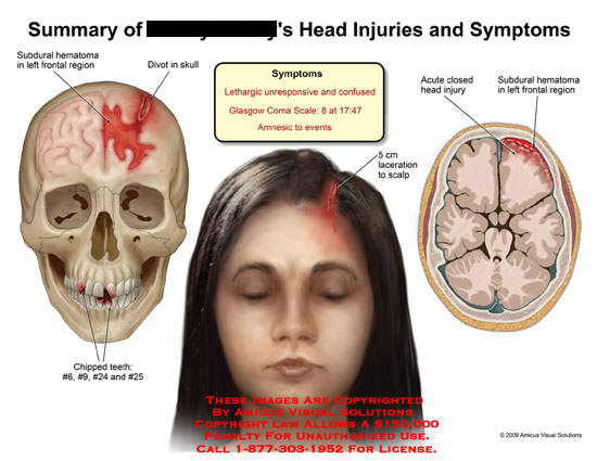 amicus,injury,subdural,hematoma,frontal,region,divot,skull,chipped,teeth,scalp,laceration,closed,head,lethargic,unresponsive,confused,glasgow,coma,amnesic