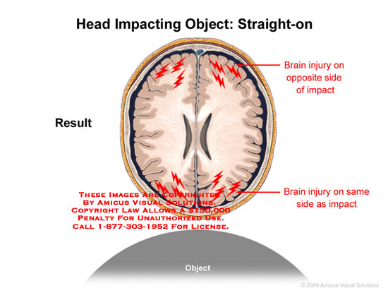 Axial view of head and brain colliding with object at front, experiencing linear coup-contrecoup forces.