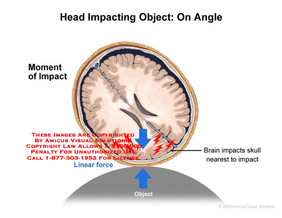 Amicus Illustration Of Amicus Injury Mechanism Brain Head