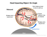 Axial view of head and brain colliding with object at an angle, experiencing linear and rotational forces.