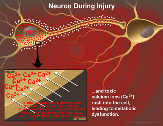 Calcium ions rush into neuron cell body, leading to metabolic dysfunction.