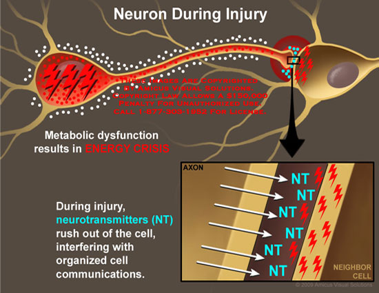 Energy crisis, and neurotransmitters interfere with cell communications.