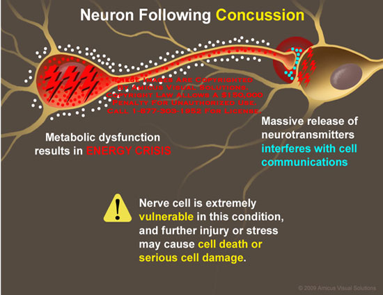 AMICUS Illustration of amicus,injury,brain,concussion,neurons ...
