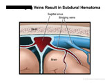 Closeup of sagittal sinus and normal bridging veins.