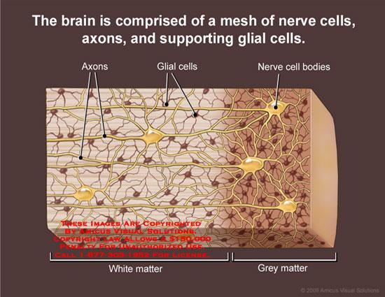 brain tissue layers - photo #26