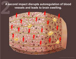 Second impact disrupts autoregulation of blood vessels and leads to brain swelling.