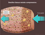 When force is applied to swollen tissue, the tissue is displaced rather than compressed.