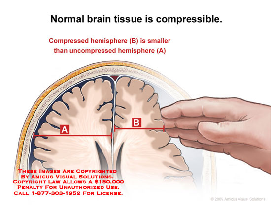 Section through head showing brain tissue being compressed by hypothetical hand.