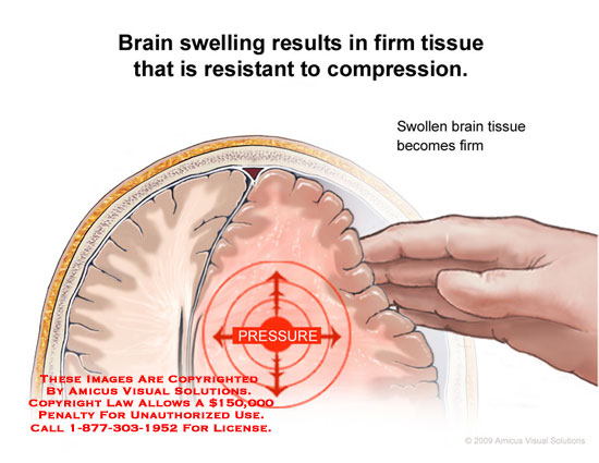 Section through head showing swollen brain tissue resisting compression by hypothetical hand.