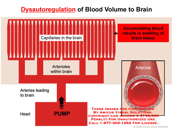 Schematic of dilated blood vessels resulting in swelling of brain tissue.