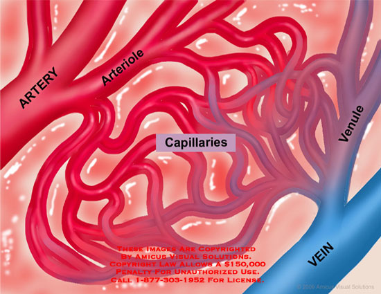 Capillary bed shown with dilated arterial supply and tissue swelling.