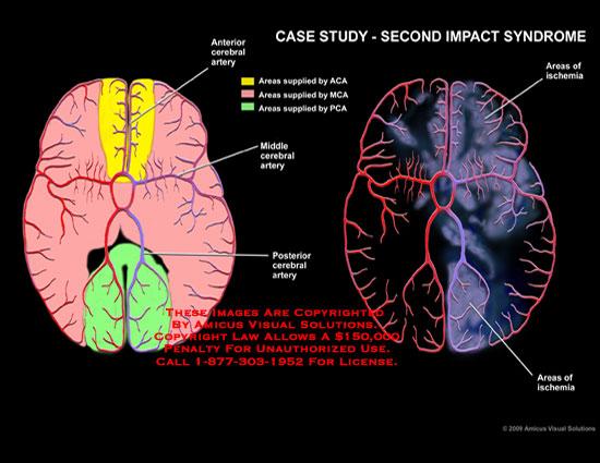 diagram of concussion mri amicus illustration of amicus,injury,second,impact ...