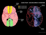 Diagrams of brain areas supplied by major cerebral arteries, overlaid with areas of ischemia.