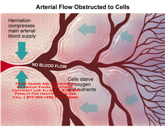 Swelling compressing main artery, obstructing blood flow to starving cells.