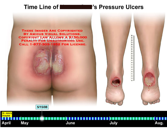Medical diagrams and resources regarding Interactive timeline showing progression of ulcer in size and depth..