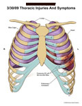 Front view of rib cage showing fractures of ribs 5 and 6, and contusion.