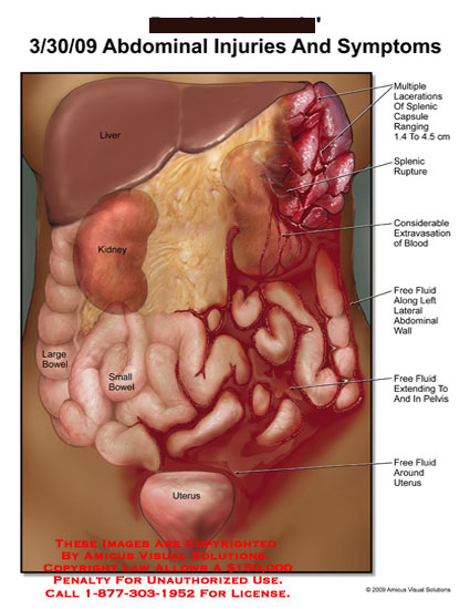Medical diagrams and resources regarding Lacerated spleen, splenic rupture, and extravasation of blood within abdominal cavity..