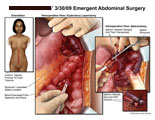 Large abdominal incision with intraoperative views of blood evacuation and spleen removal.
