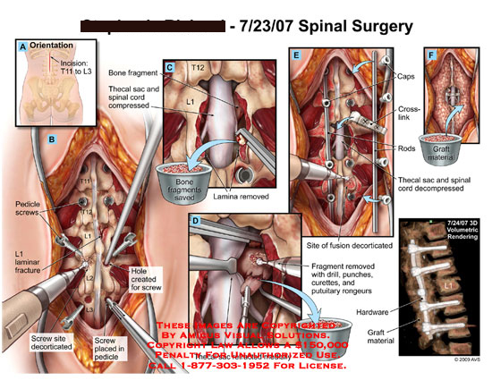 amicus,surgery,spine,spinal,incision,T11-L3,pedicle,screws,laminar,fracture,decorticated,hole,created,bone,fragment,thecal,sac,spinal,cord,compressed,drill,punches,curettes,putuliary,rongeurs,fusion,site,caps,crosslink,rods,graft,material