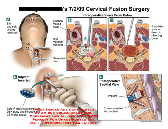 Neck Surgery  Neck Surgery Anterior Cervical Discectomy And Fusion